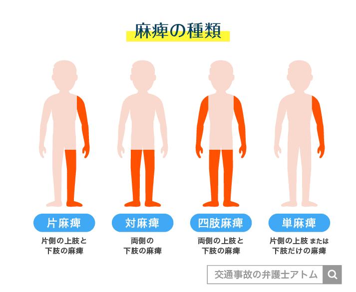 麻痺の種類